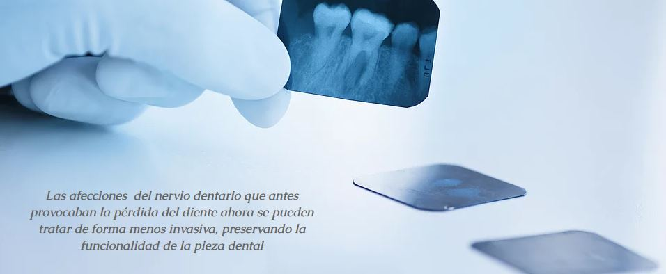 tratamiento dental endodoncia