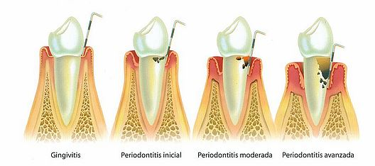 Periodoncia Clínica dental en Madrid