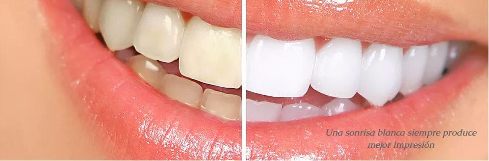 Tratamiento dental de estética