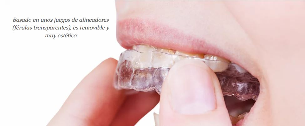 Invisalign: ¡descubre las ventajas de la ortodoncia invisible!