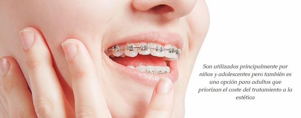 tratamiento dental ortodoncia