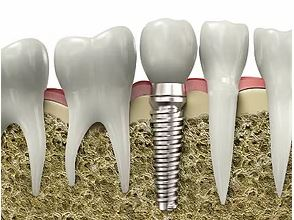 Implantes dentales Clínica dental en Madrid