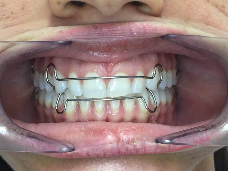 La importancia de los retenedores de ortodoncia